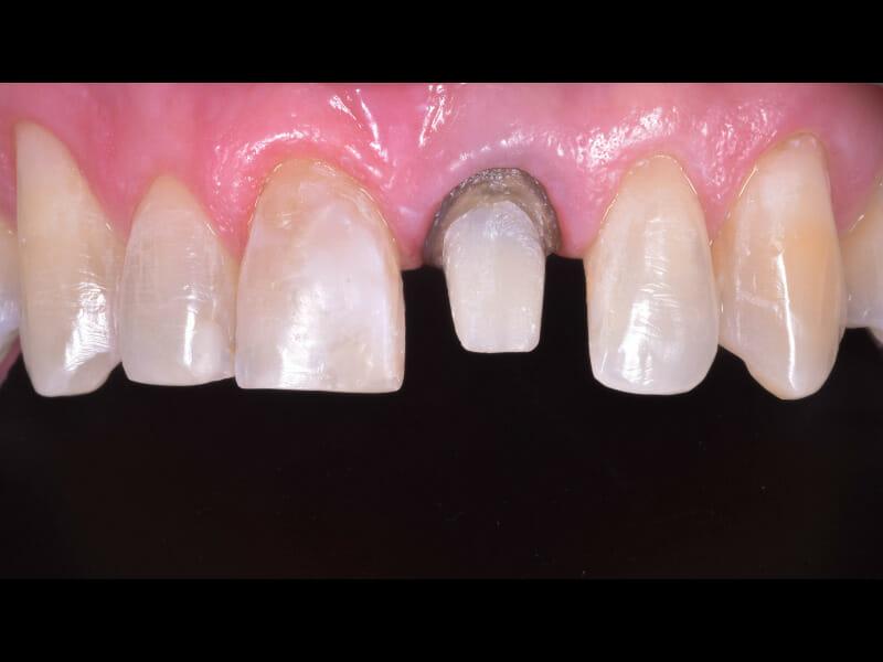 Teeth prepared for veneer