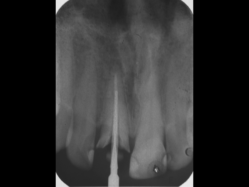 Depth of the root canal