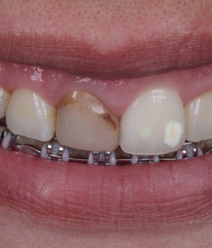Esthetic restorations in severely darkened anterior teeth using dental cement and fiberglass post